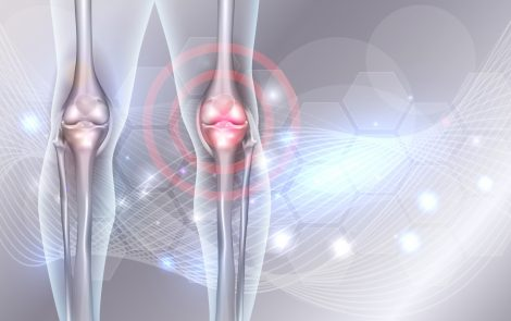 Surgical Joint Fusion Is Effective Treatment for Rare Knee Deformity in FAP, Case Report Shows