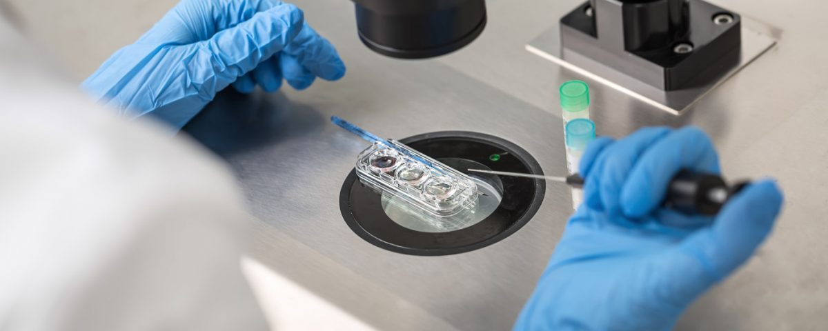 Abdominal Fat Pad Biopsy Accurate at Diagnosing ATTR, Study Finds